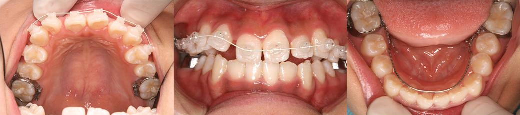 治療中(1年2ヶ月後) 15歳2ヶ月 上顎:ワイヤー矯正開始