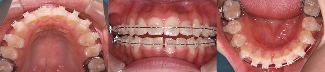 治療中(1年11ヶ月後) 15歳11ヶ月 下顎:ワイヤー矯正開始