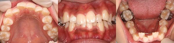 治療前 14歳0ヶ月 下顎:3D矯正開始